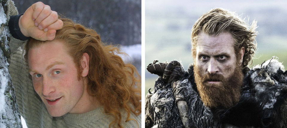 antes e depois de Game of Thrones (39)